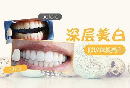 郑州牙齿彩光美白-