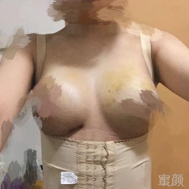 https://img.miyanlife.com/timg/161210/1214534560-1.jpg