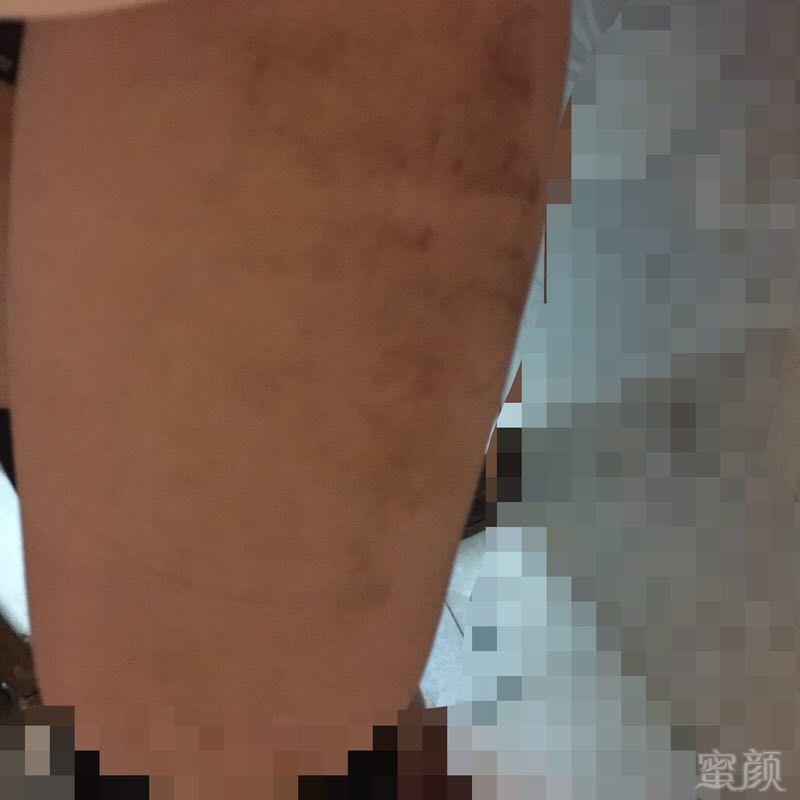 https://img.miyanlife.com/timg/161210/1403244020-10.jpg