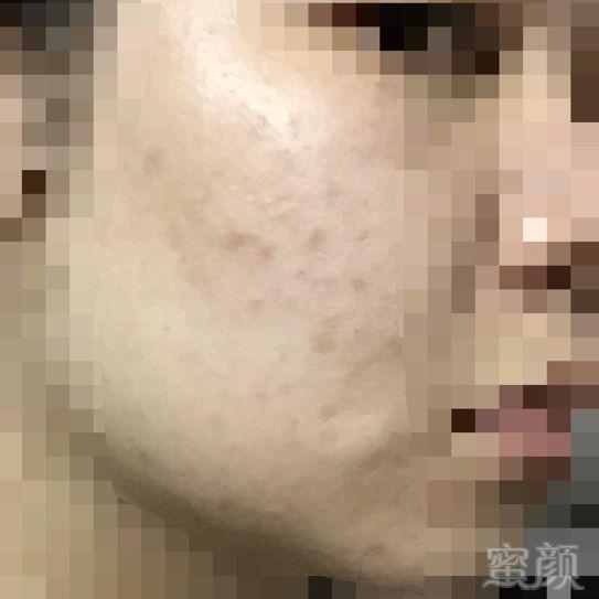https://img.miyanlife.com/timg/161210/150Q341L-0.jpg