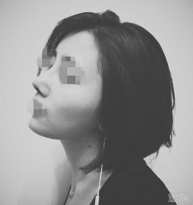https://img.miyanlife.com/timg/161210/155519C42-5.jpg