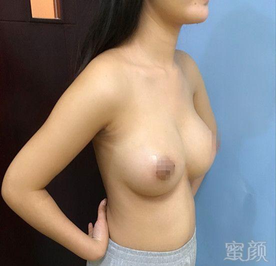 https://img.miyanlife.com/timg/161210/161U9C32-5.jpg