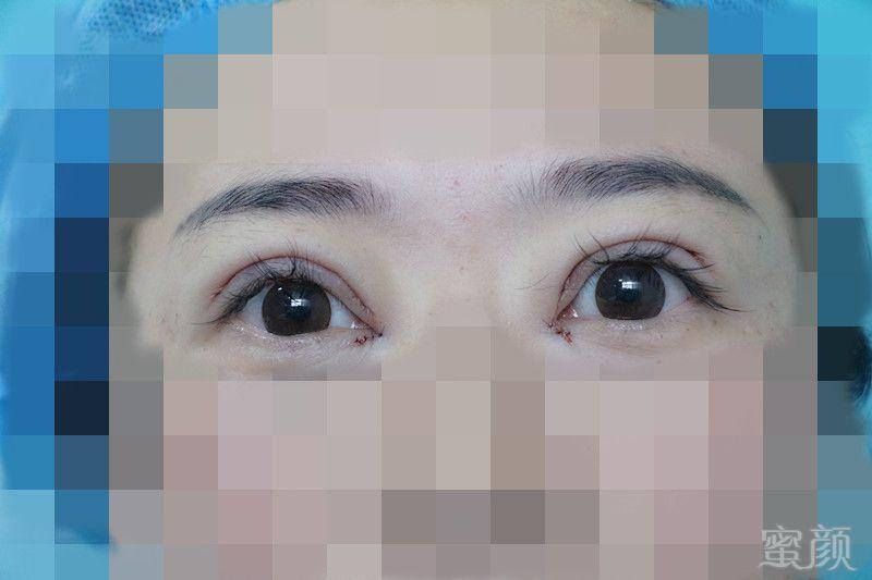 https://img.miyanlife.com/timg/161210/1R321D37-3.jpg